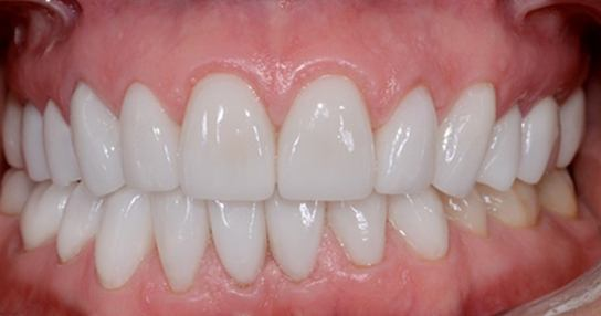 Closeup of woman's flawlessly aligned healthy smile after treatment