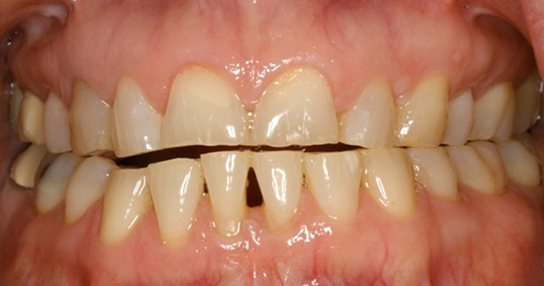 Closeup of woman's damaged misaligned smile before treatment