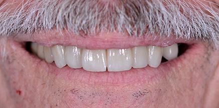 White healthy smile after treatment
