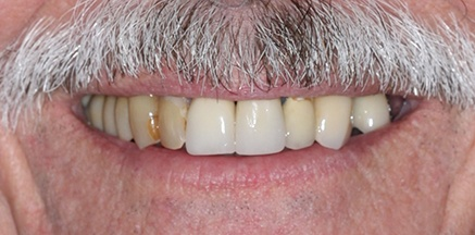 Darkly colored smile before treatment