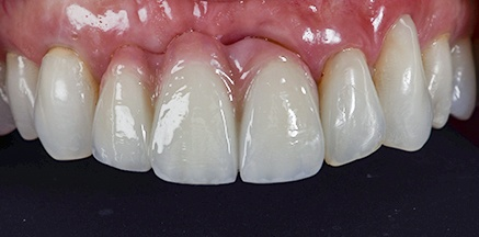 Healthy teeth and gums after treatment