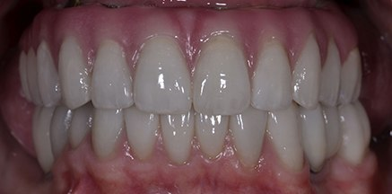 Smile with implant supported denture