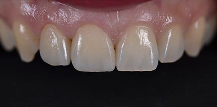 Smile after tooth-colored crown is placed on front tooth