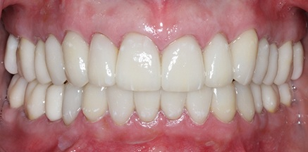Smile with porcelain crowns