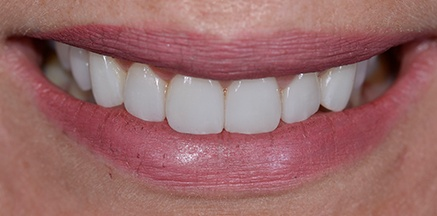 Smile after orthodontic treatment