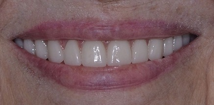 Smile after implant treatment