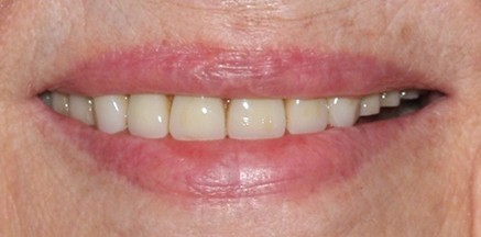 Smile before implant treatment