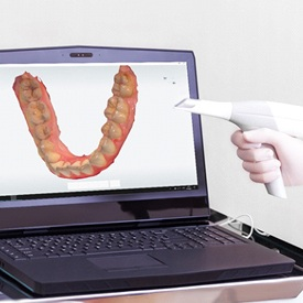 intraoral scanner and laptop