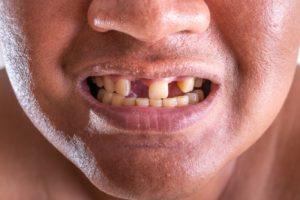 a man with missing teeth